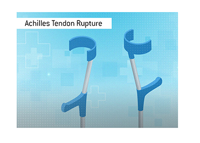 Achilles Tendon Rupture is one of the most serious injuries for a football player.